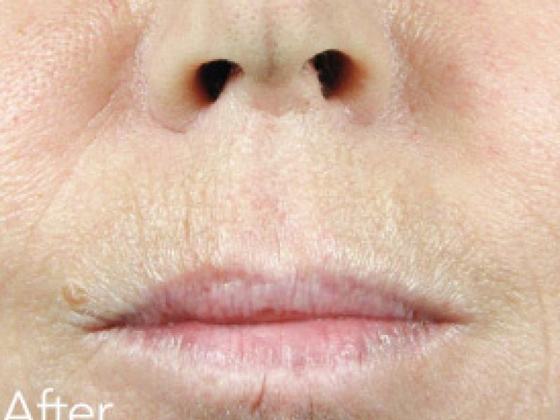 Treatments - Dermal Fillers - Award winning Facial